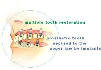 tooth_rehab