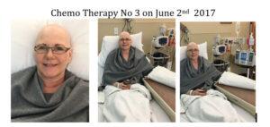 Chemotheerapy No. 3