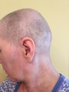 Second hair shaving Aug 2017