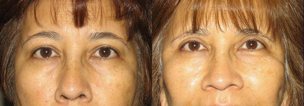 Eyelid Patient 11   Guyette Facial & Oral Surgery, Scottsdale, AZ