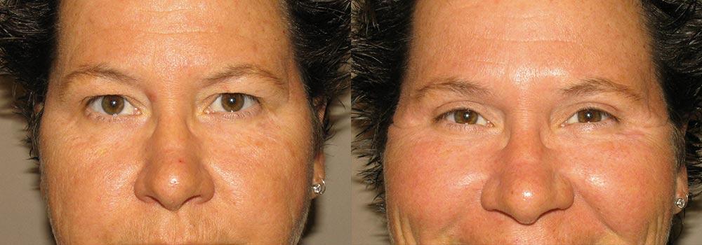 Eyelid Patient 15 | Guyette Facial & Oral Surgery, Scottsdale, AZ