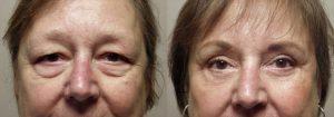 Eyelid Patient 4 | Guyette Facial & Oral Surgery, Scottsdale, AZ