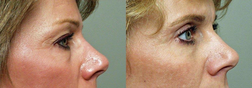 Eyelid Patient 5   Guyette Facial & Oral Surgery, Scottsdale, AZ