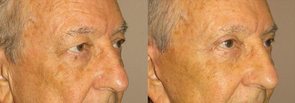 Eyelid Patient 6   Guyette Facial & Oral Surgery, Scottsdale, AZ