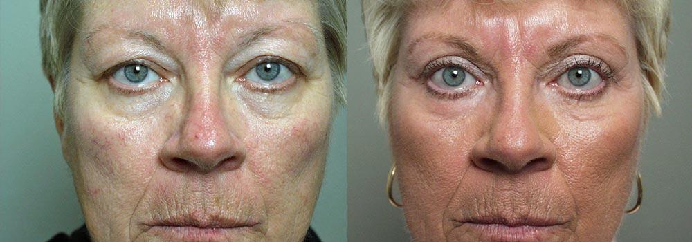 Eyelid Patient 7 | Guyette Facial & Oral Surgery, Scottsdale, AZ