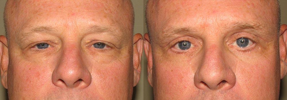 Eyelid Patient 8   Guyette Facial & Oral Surgery, Scottsdale, AZ