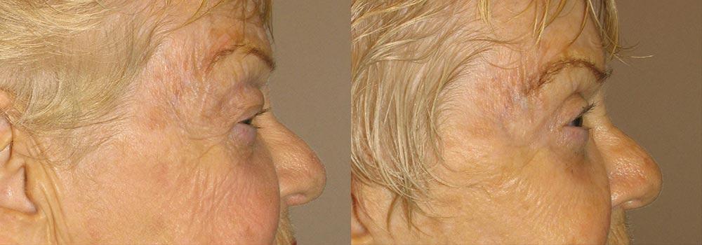 Eyelid Patient 9   Guyette Facial & Oral Surgery, Scottsdale, AZ