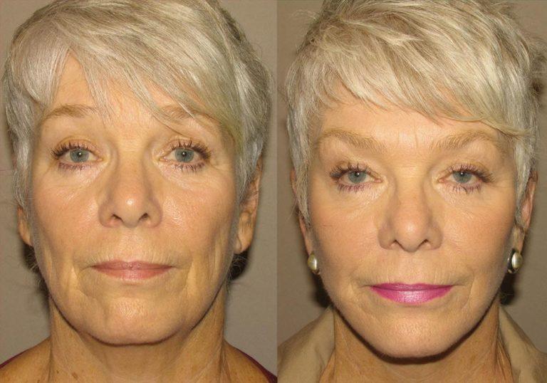 Facelift Patient 2 | Guyette Facial & Oral Surgery, Scottsdale, AZ