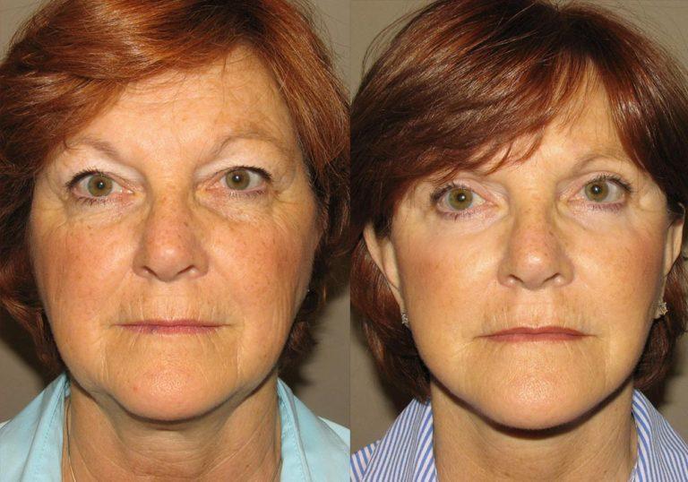 Facelift Patient 4 | Guyette Facial & Oral Surgery, Scottsdale, AZ