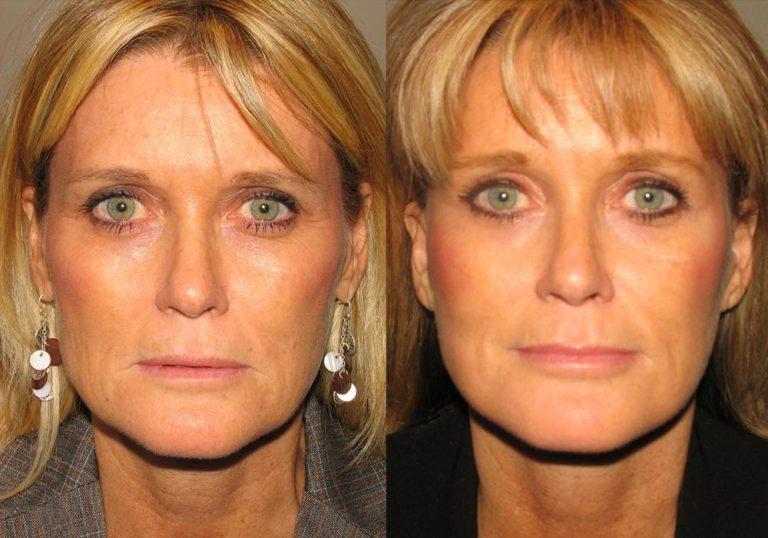 Facelift Patient 5 | Guyette Facial & Oral Surgery, Scottsdale, AZ