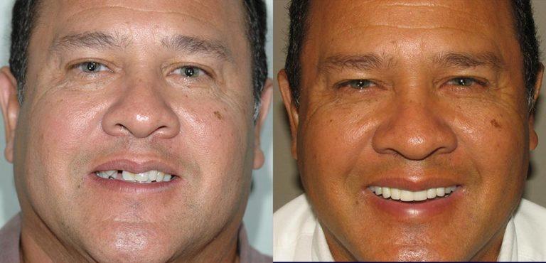 All-on-4 Photo Patient 1   Guyette Facial & Oral Surgery, Scottsdale, AZ