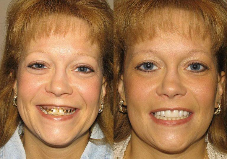 All-on-4 Photo Patient 2   Guyette Facial & Oral Surgery, Scottsdale, AZ