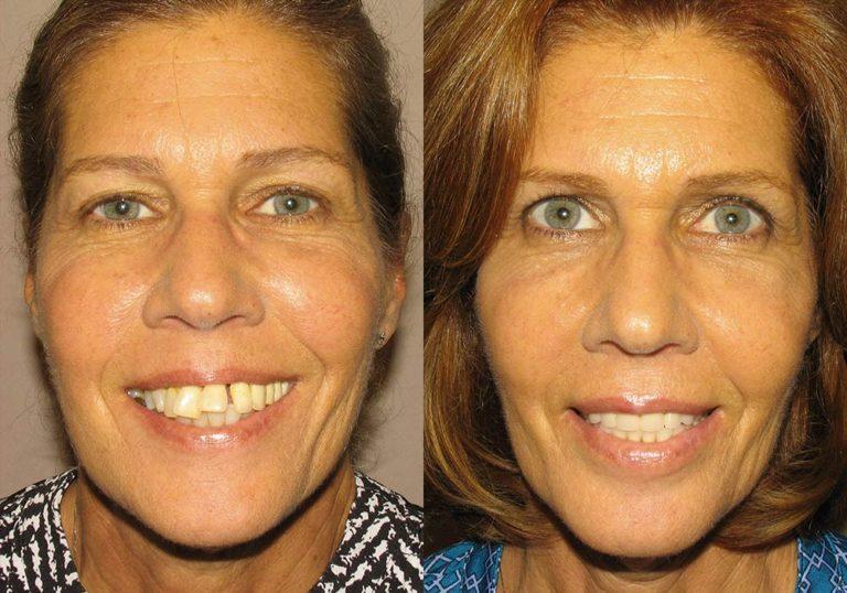 All-on-4 Photo Patient 3   Guyette Facial & Oral Surgery, Scottsdale, AZ