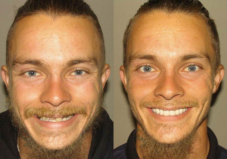 All-on-4 Photo Patient 5   Guyette Facial & Oral Surgery, Scottsdale, AZ