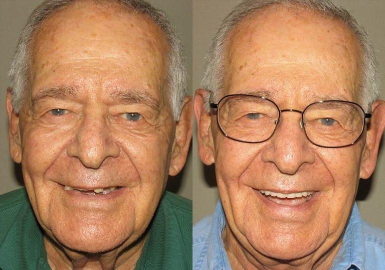 All-on-4 Photo Patient 6   Guyette Facial & Oral Surgery, Scottsdale, AZ