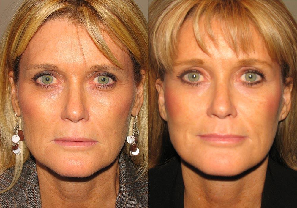 Brow Lift Patient 1   Guyette Facial & Oral Surgery, Scottsdale, AZ