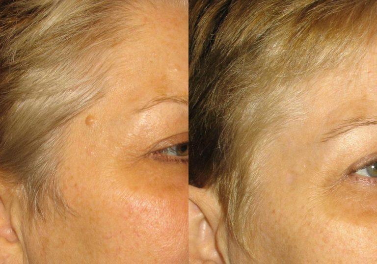 Mole Removal Patient 2   Guyette Facial & Oral Surgery, Scottsdale, AZ