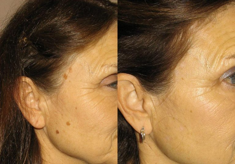 Mole Removal Patient 3   Guyette Facial & Oral Surgery, Scottsdale, AZ