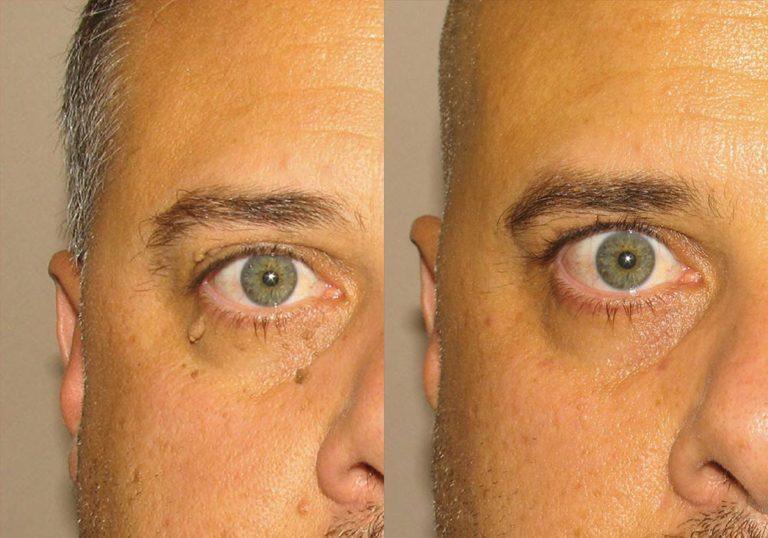 Mole Removal Patient 4   Guyette Facial & Oral Surgery, Scottsdale, AZ
