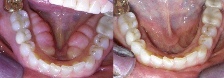 Tori Removal Photo Patient 2   Guyette Facial & Oral Surgery, Scottsdale, AZ