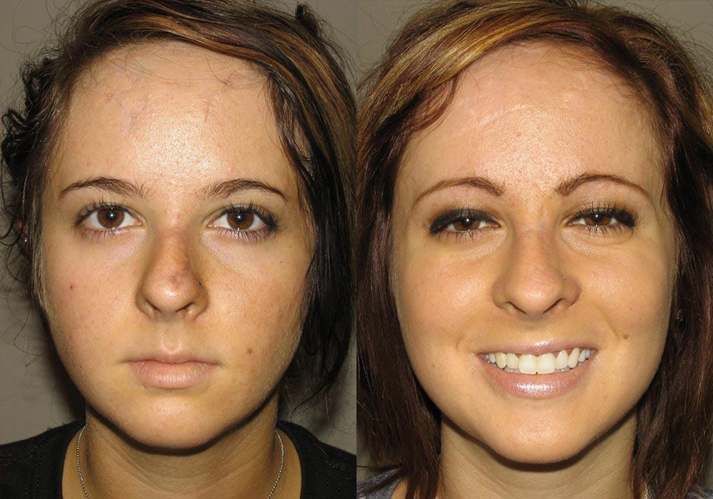 Facial Trauma Patient 1   Guyette Facial & Oral Surgery, Scottsdale, AZ