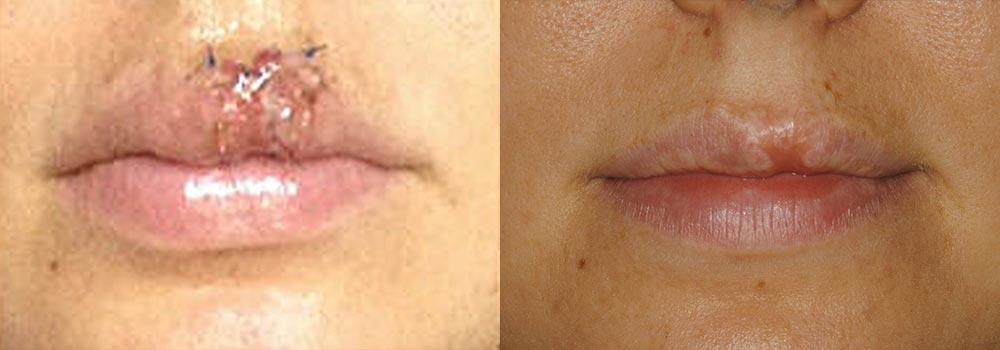 Facial Trauma Patient 2 | Guyette Facial & Oral Surgery, Scottsdale, AZ