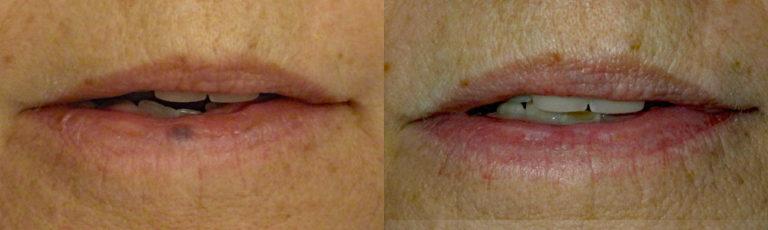 Lesion Removal Patient 2 | Guyette Facial & Oral Surgery, Scottsdale, AZ