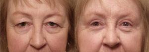 Eyelid Patient 17 | Guyette Facial & Oral Surgery, Scottsdale, AZ