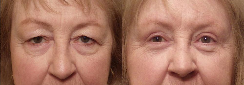 Eyelid Patient 17   Guyette Facial & Oral Surgery, Scottsdale, AZ