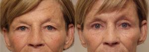 Eyelid patient 18 | Guyette Facial & Oral Surgery, Scottsdale, AZ