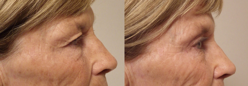 Eyelid Surgery patient 18a   Guyette Facial & Oral Surgery, Scottsdale, AZ