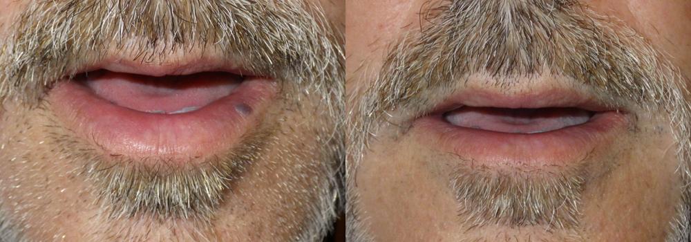 Lesion Removal Patient 4 | Guyette Facial & Oral Surgery, Scottsdale, AZ