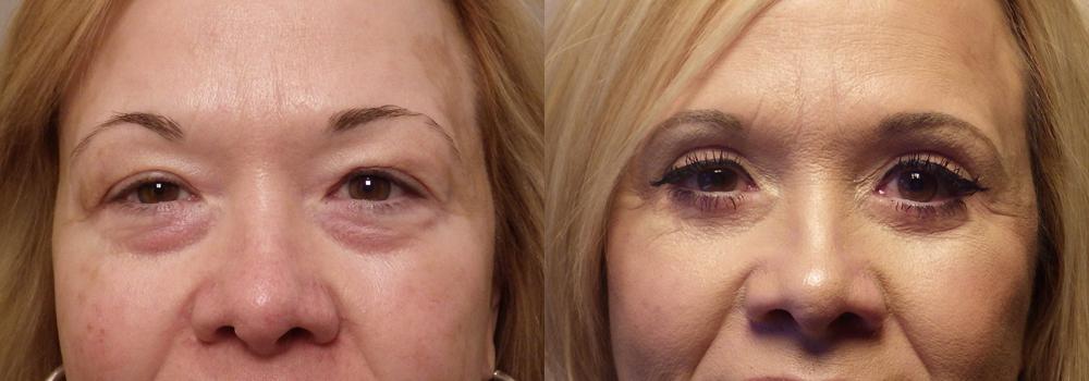 Blephorplasty-patient 19 | Guyette Facial & Oral Surgery, Scottsdale, AZ