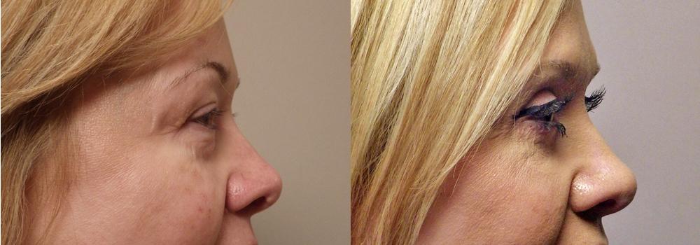Blephorplasty patient 19 | Guyette Facial & Oral Surgery, Scottsdale, AZ