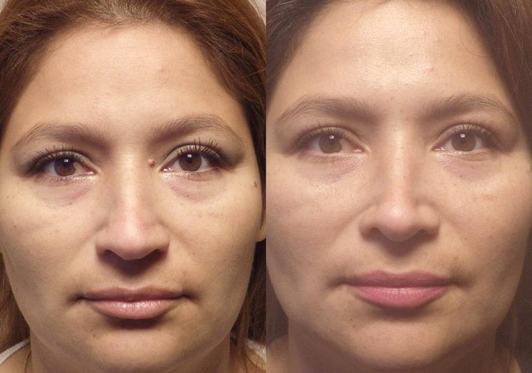 Rhinoplasty patient9 | Guyette Facial & Oral Surgery, Scottsdale, AZ
