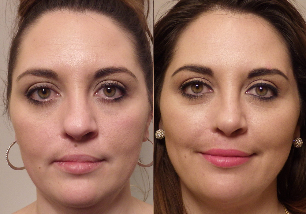Rhinoplasty Patient 10   Guyette Facial & Oral Surgery, Sccottsdale AZ