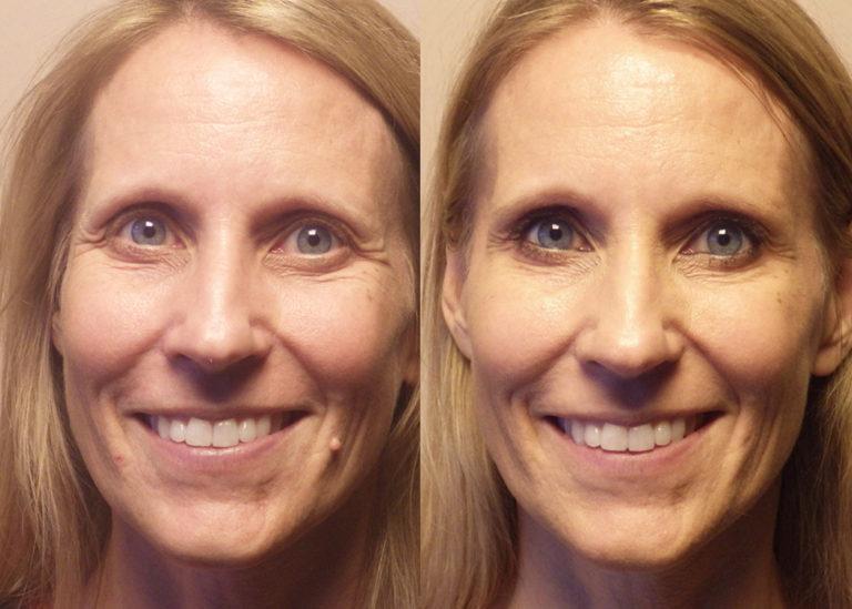 Mole removal patient 9 } Guyette Facial & Oral Surgery, Sccottsdale, AZ
