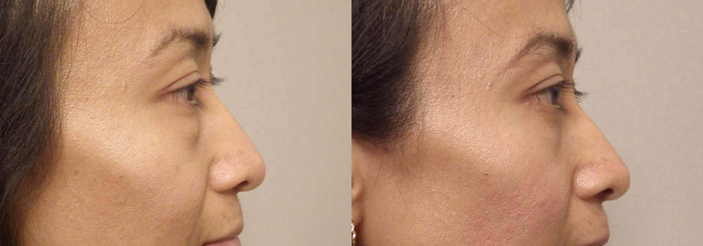 Eyelid Patient 19   Guyette Facial & Oral Surgery, Scottsdale, AZ