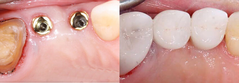 Guyette Dental Implant multiple teeth | Guyette Facial & Oral Surgery