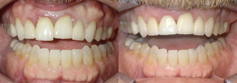 Detnal Implant Patient 6 | Guyette Facial & Oral Surgery