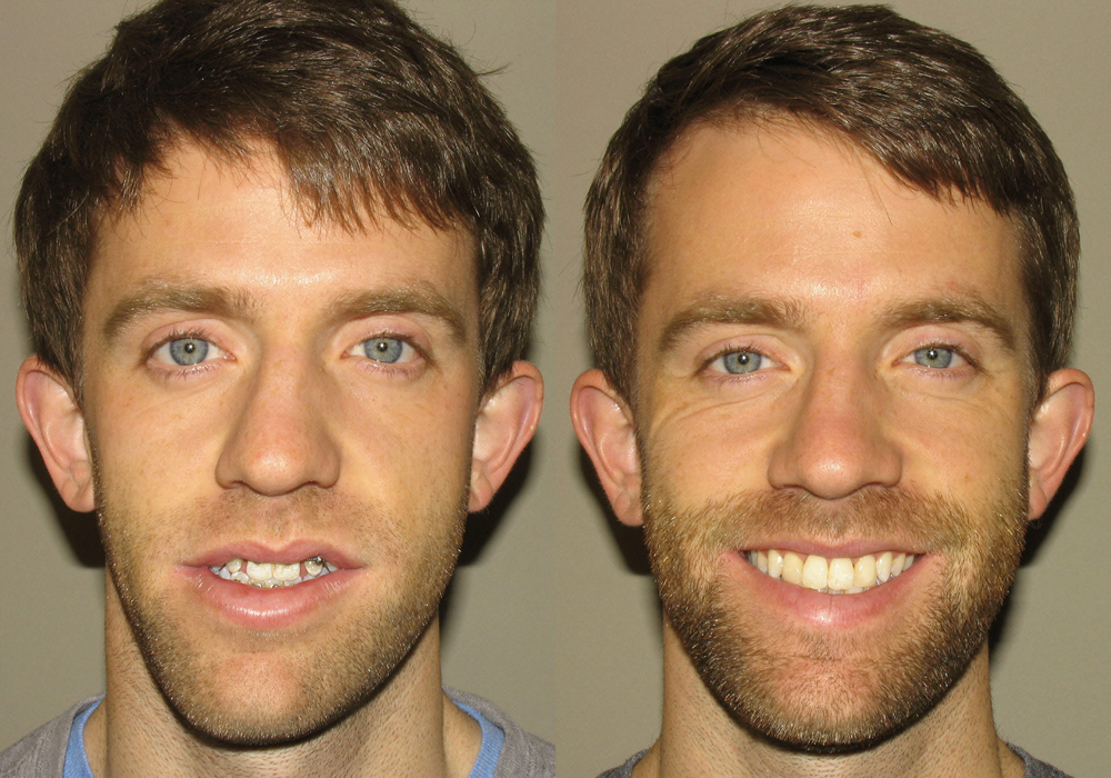 Jaw-Surgery Photo Patient 6 | Guyette Facial & Oral Surgery, Scottsdale, AZ