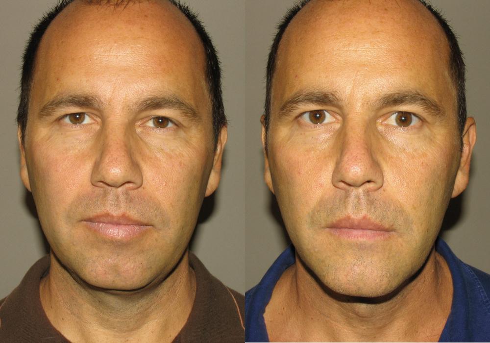 Facial Implant Photo Patient 3   Guyette Facial & Oral Surgery, Scottsdale, AZ