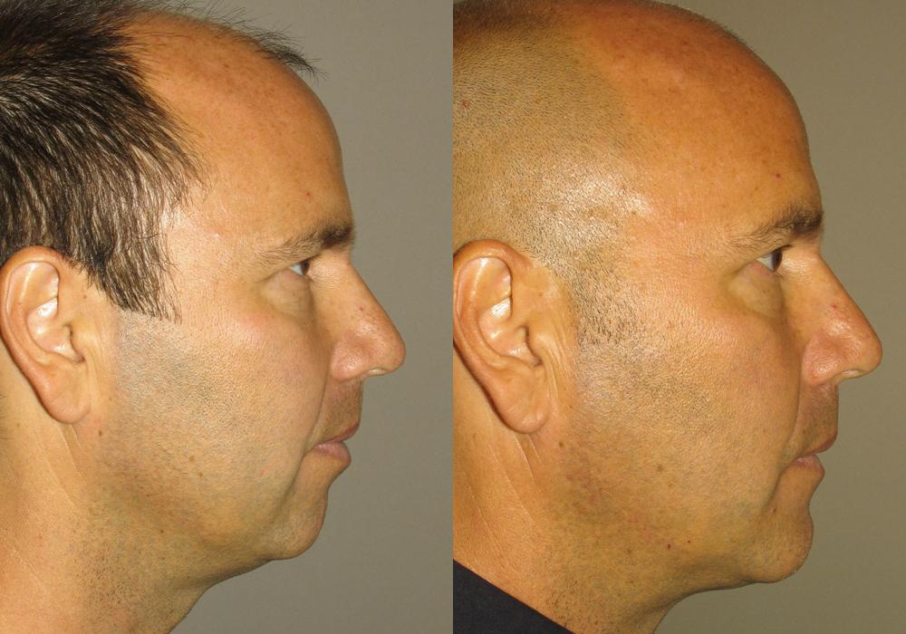 Genioplasty Facial-Surgery Photo Patient 5 | Guyette Facial & Oral Surgery, Scottsdale, AZ