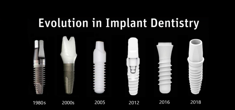 Zirconia-Dental-Implant-Guyette-Oral-Surgery-Scottsdale-AZ