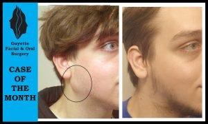 Cyst Removal photo patient 1   Guyette Facial_&_Oral_Surgery, Scottsdale AZ Cyst