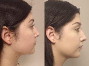 Facial mole removal photo patient 11 side view | Guyette Facial & Oral Surgery, Scottsdale, AZ