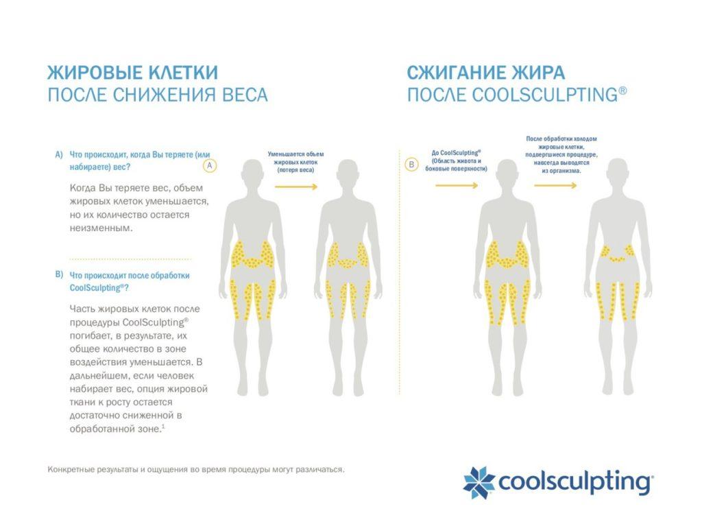 A) Что происходит, когда Вы теряете (или набираете) вес? A Когда Вы теряете вес, объем жировых клеток уменьшается, но их количество остается неизменным. B) Что происходит после обработки CoolSculpting®? Часть жировых клеток после процедуры CoolSculpting® погибает, в результате, их общее количество в зоне воздействия уменьшается. В дальнейшем, если человек набирает вес, опция жировой ткани к росту остается достаточно сниженной в обработанной зоне.