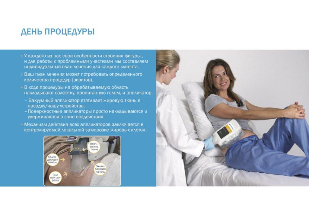 У каждого из нас свои особенности строения фигуры , и для работы с проблемными участками мы составляем индивидуальный план лечения для каждого клиента. Ваш план лечения может потребовать определенного количества процедур (визитов). В ходе процедуры на обрабатываемую область накладывают салфетку, пропитанную гелем, и аппликатор. – Вакуумный аппликатор втягивает жировую ткань в насадку/чашу устройства. –Поверхностные аппликаторы просто накладываются и удерживаются в зоне воздействия. Механизм действия всех аппликаторов заключается в контролируемой локальной заморозке жировых клеток.