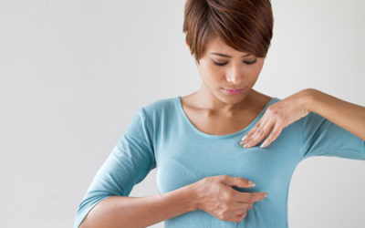 What Are the Signs of Inflammatory Breast Cancer?