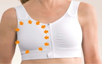Many things have to be considered when fitting a breast prosthesis.